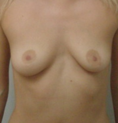 Изменение формы груди говорит о гипоплазии