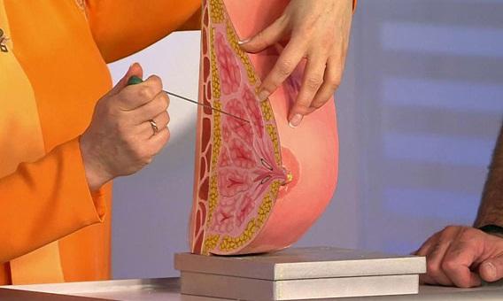 Туберкулез груди проявляет себя сначала плотными болезненными узелками
