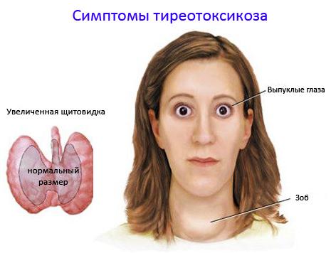 Самое распространенное заболевание щитовидной железы - тиреотоксикоз