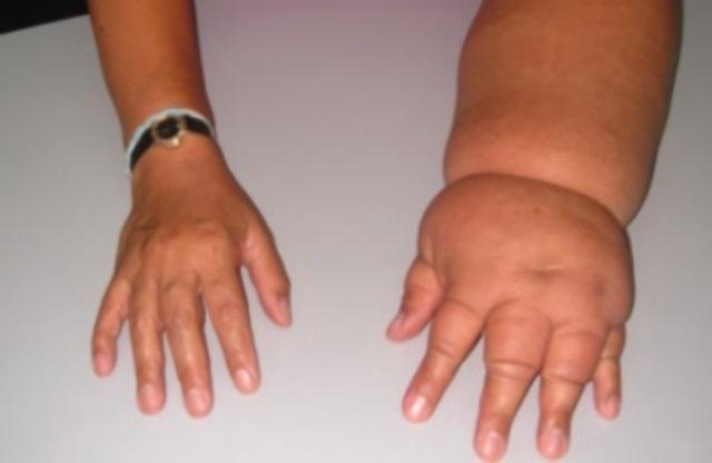 Лимфостаз может появиться мгновенно после операции