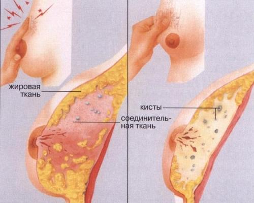 Хворобливе ущільнення в молочній залозі: види і причини