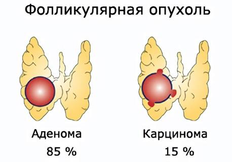 Фолликулярная опухоль в большинстве случаев имеет благоприятный прогноз