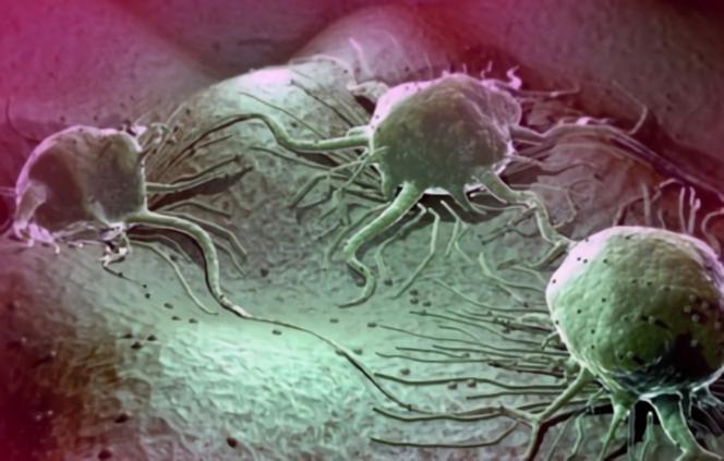 В процессе развития диффузно фиброзно-кистозного заболевания могут появиться раковые клетки
