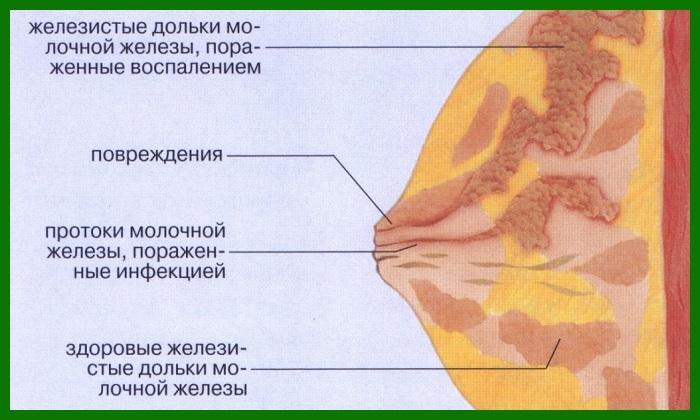 Upsize — крем для увеличения груди состав, инструкция,