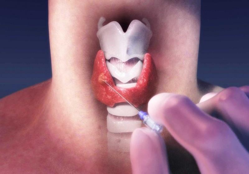 Биопсия рекомендована  при выявлении образований диаметром более 5 мм
