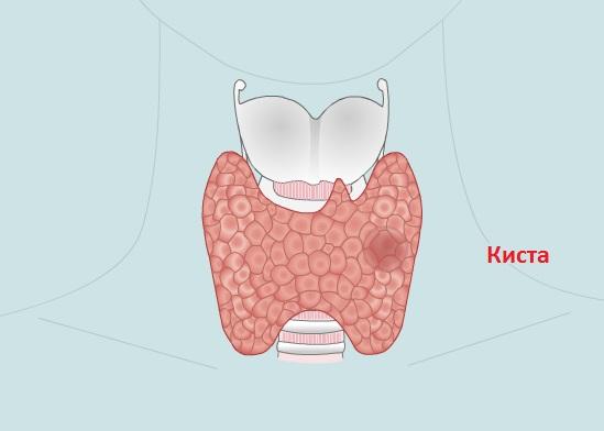 Коллоидная киста щитовидной железы может длительное время не проявлять себя