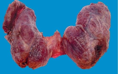 Коллоидный зоб характеризуется разрастанием тканей щитовидной железы