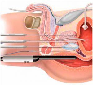 Эффективным методом лечения предстательной железы является криотерапия
