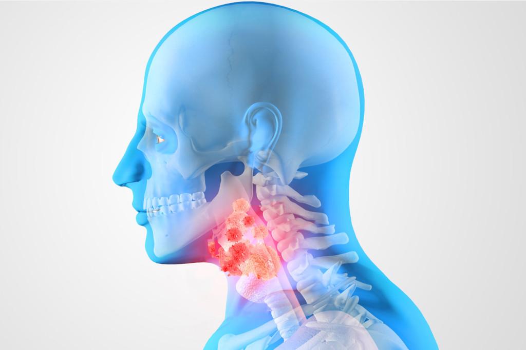 Токсическая аденома может проявляться множественными узлами в щитовидке