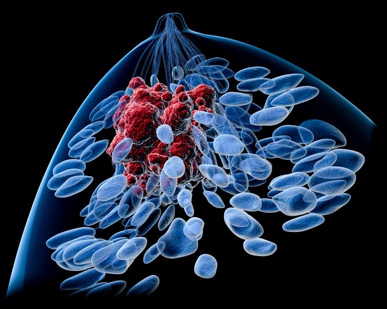 Если опухоль в груди была крупной, это увеличивает риск рецидива