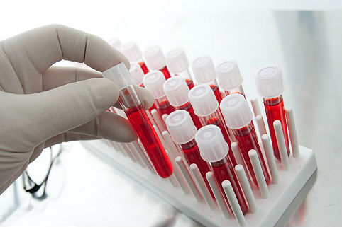 Лабораторный анализ крови определит уровень гормонов