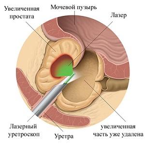 Лазерная вапоризация - одна из наиболее эффективных методик лечения аденомы простаты