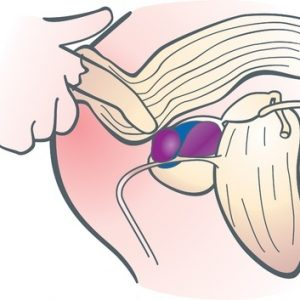Массаж улучшает кровообращение и устраняет застой секрета предстательной железы