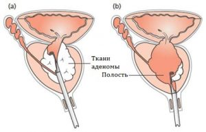 ТУР - эффективный метод лечения аденомы простаты