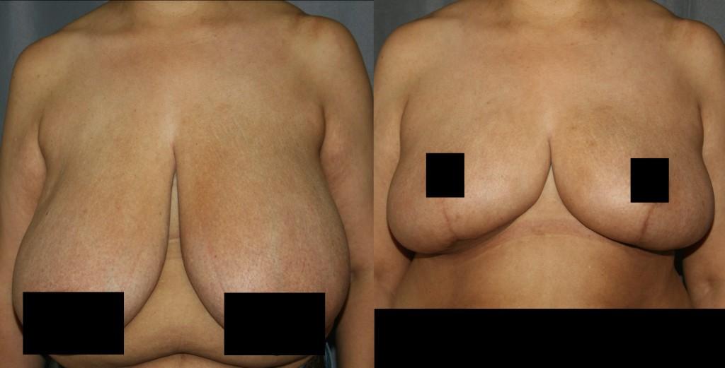 Лечение макромастии хирургическим методом