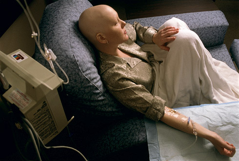 Рак лечат с помощью химиотерапии