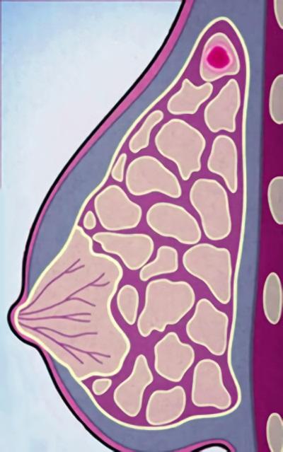 Опухоль проявляется в самых разных формах, начиная от маленьких узлов, доходя до размеров с грудную клетку