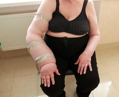 Лимфостаз руки возникает практически у всех женщин, что перенесли мастэктомию