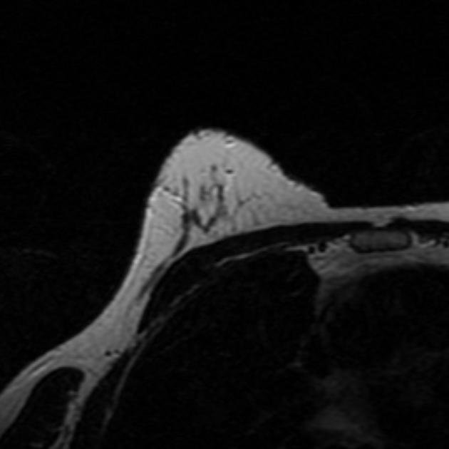 Липома возникает в результате разрастания жировых тканей