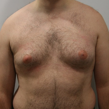 Уплотнения из-за лишней жировой массы