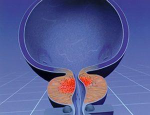 Рак простаты может быть локализованным и распространенным