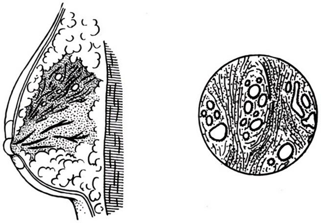 Локализованная мастопатия имеет четкие формы