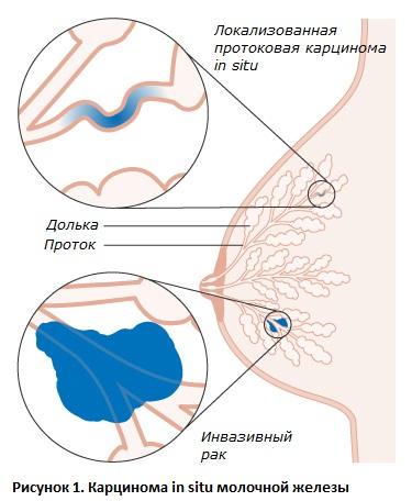 Существует несколько разновидностей аденокарциномы