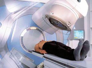 На третей стадии рака простаты назначается лучевая терапия