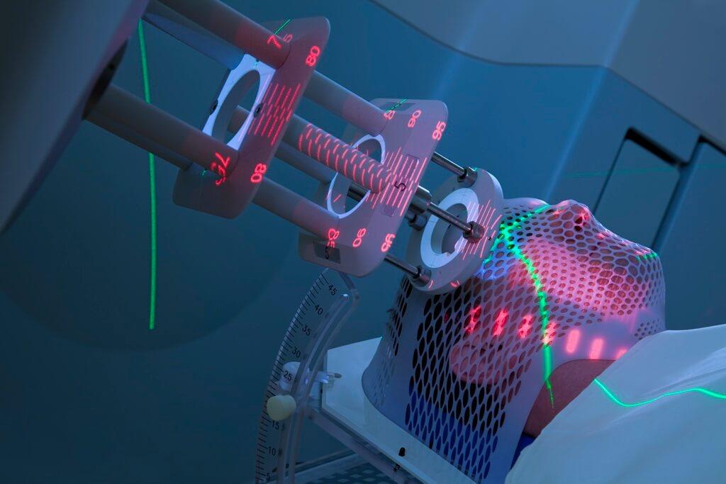 Воздействие радиации при лучевом облучении провоцирует сбои в работе щитовидки