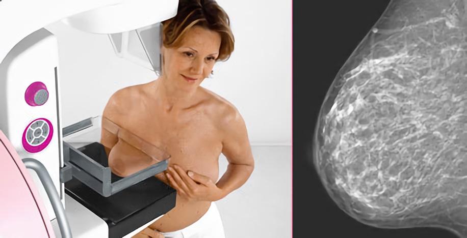 Выявление микрокальцинатов в молочной железе