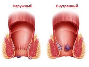 Пациентам с геморроем запрещено проводить массаж простаты