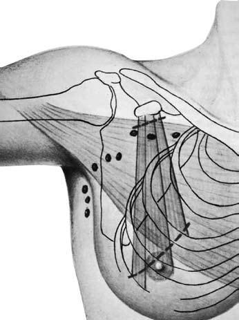 Радикальная мастэктомия предполагает удаление всех групп мышц
