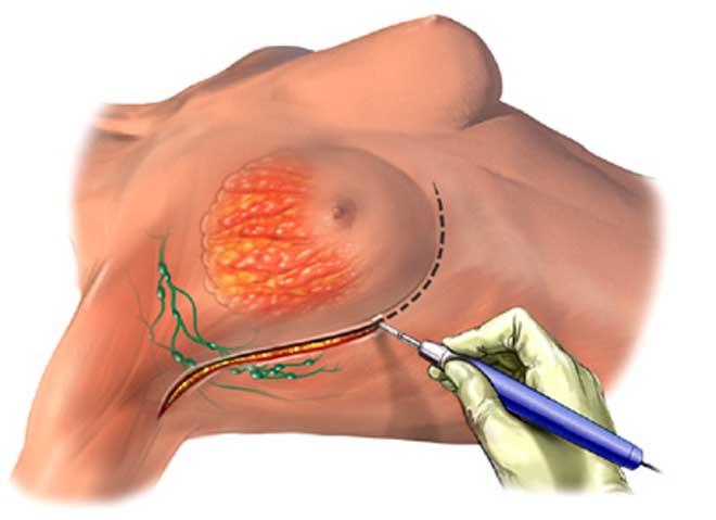 Мастэктомия - полное удаление грудной железы
