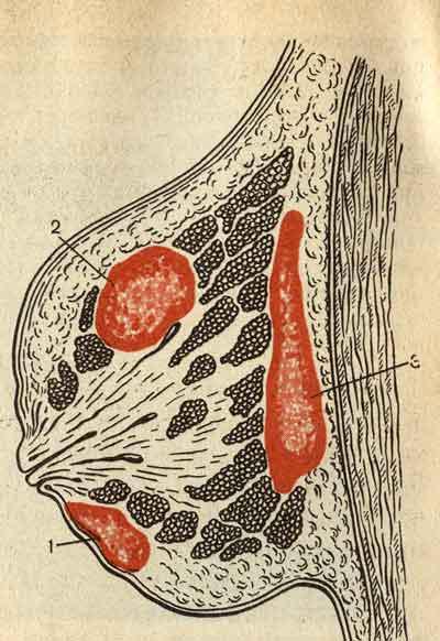 Участок молочной железы становится очень плотным, красным, болезненным