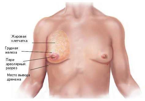 Гинекомастия у мужчины лечится хирургическим путем