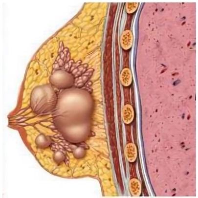 После выкидыша может развиться мастопатия