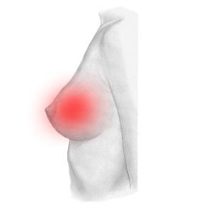 На начальных стадиях заболевания мастопатия выражена слабо