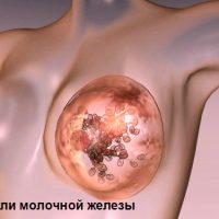 В груди женщины появляются доброкачественные изменения