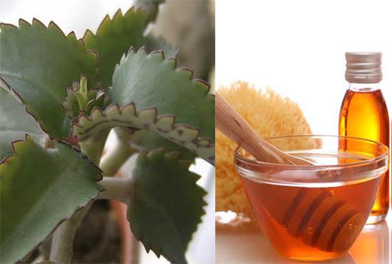 Мед и каланхоэ уменьшают уплотнения в груди