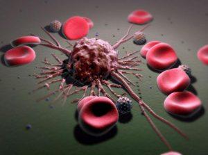 Рак простаты может метастазировать в отдаленные органы