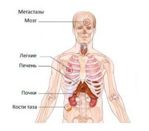 Рак простаты дает метастазы в костную ткань