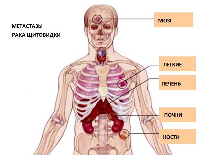 Медуллярная опухоль щитовидки дает метастазы в другие органы, поэтому прогноз неблагоприятный