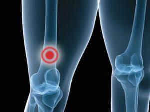 Метастазы вызывают появление боли в ногах