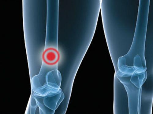 Боли в ногах при раке простаты