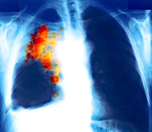 Рак груди может дать метастазы в легкие