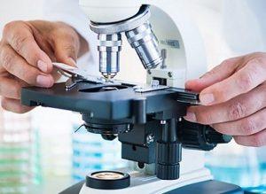 Секрет простаты исследуется под микроскопом