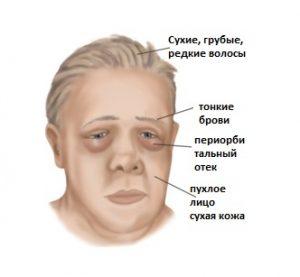Микседема - осложнение гипотиреоза