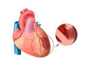 Гормоны щитовидной железы влияют на миокард