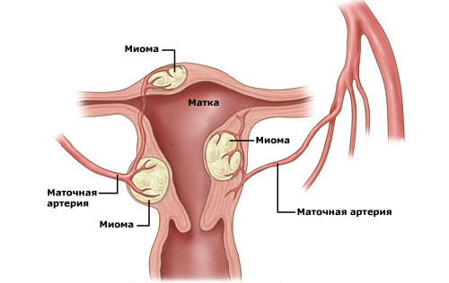 Мастопатия часто протекает совместно с миомой матки