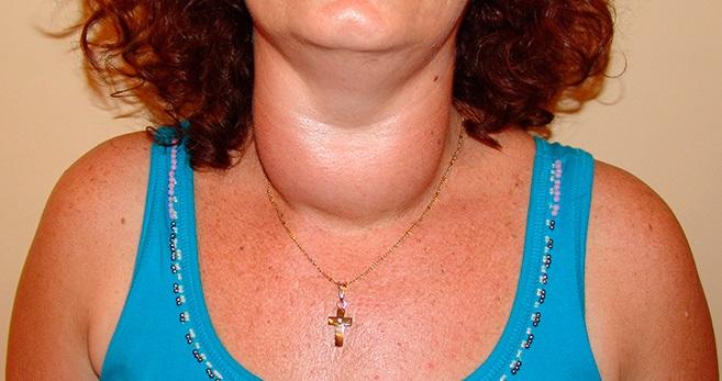 Многоузловым зобом называется появление нескольких образований с разной локализацией в щитовидке